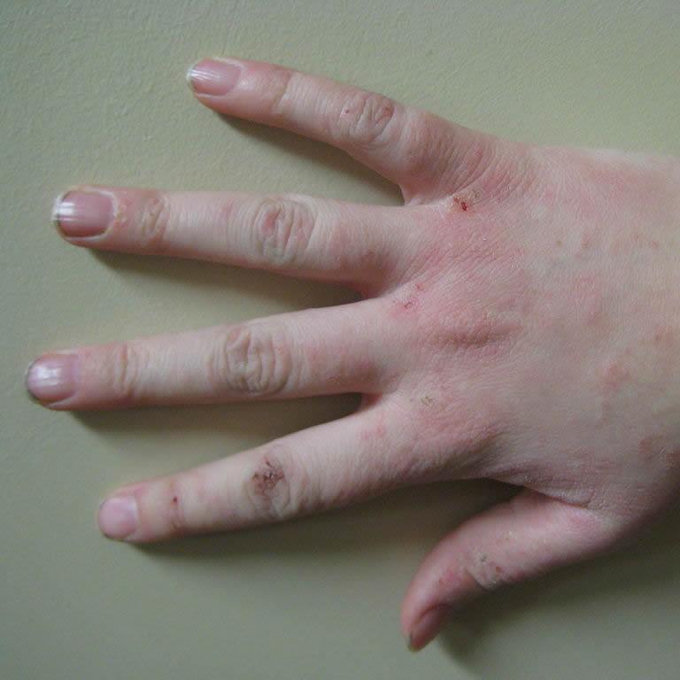 Dermatitis, Psoriasis, Eczema and Rosacea
