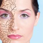 Treating Dry Skin