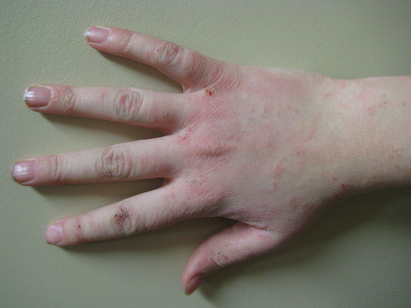 Eczema Has Been a Recognized Skin Disease for Millennia